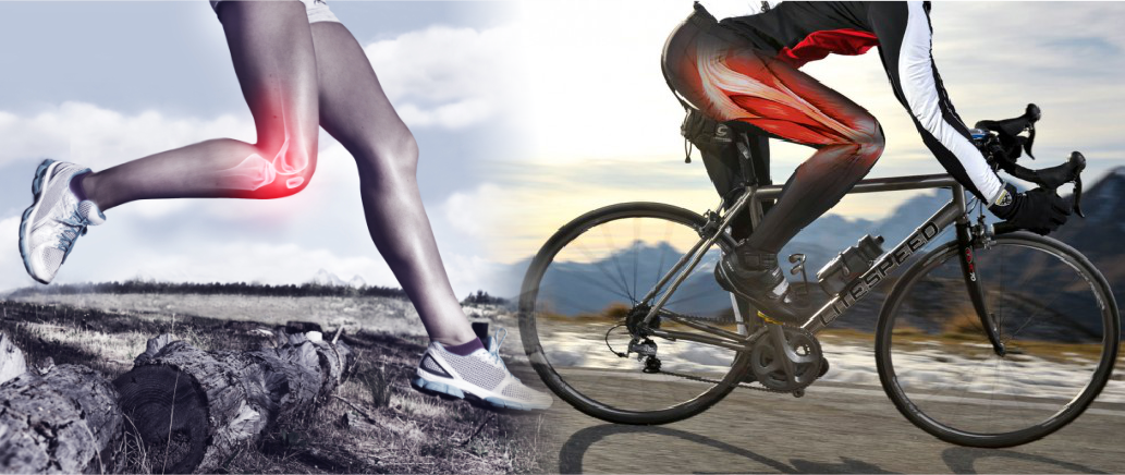 Preventing & Managing Iliotibial Band Syndrome (ITBS)
