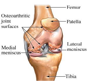 Knee arthritis physiotherapy treatment metro physio knee arthritis treatment ccuart Gallery
